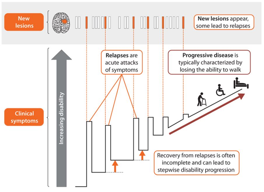 Brain Health Grafik - nur 1 von 10 MS Läsionen führt zu einem Schub