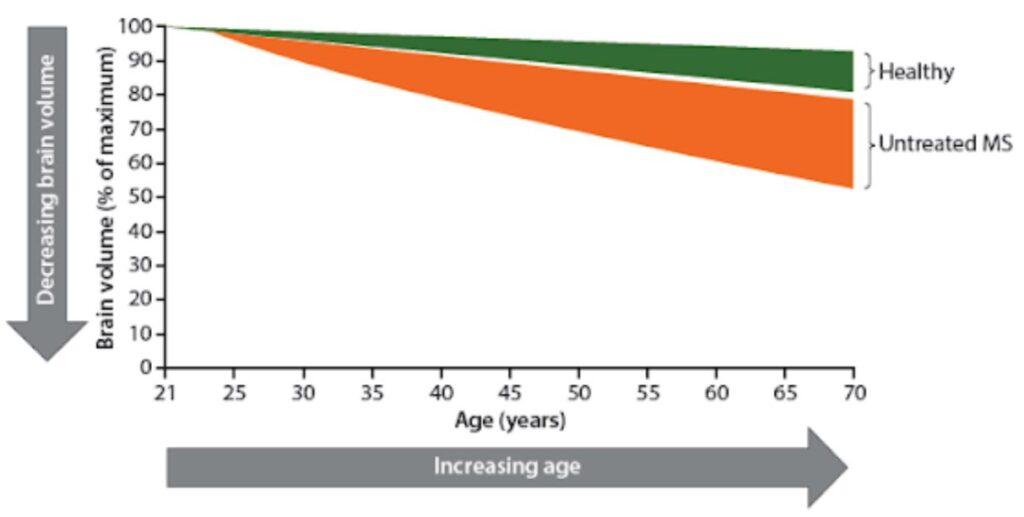 MS Brain Health Grafik zur fortschreitenden Hirnatrophie