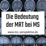 Interview mit Dr. Hagen Kitzler zur Bedeutung der MRT bei Multipler Sklerose