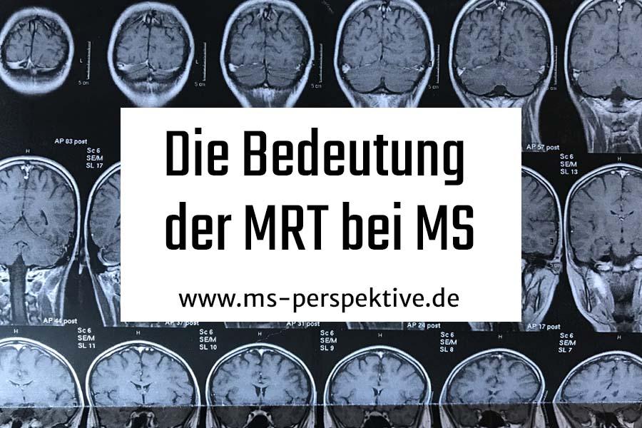 Coverbild die Bedeutung der MRT bei Multipler Sklerose